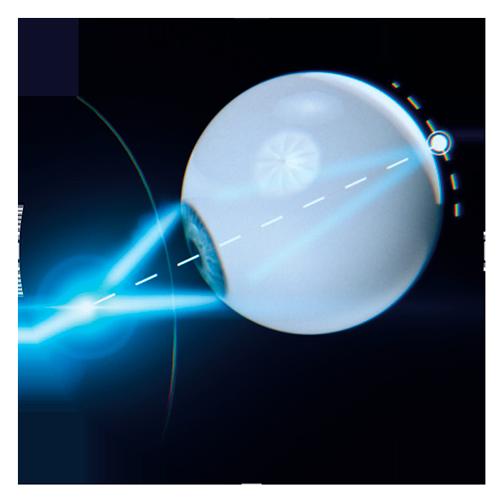 Optimesh - Horizons Optical